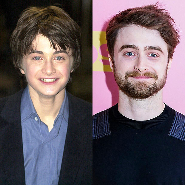 Harry Potter Cast Through The Years Pics Of Emma Watson More Hollywood Life Heard Zone